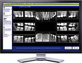 Digital Dental X-ray Technology at Clinton Family Dental