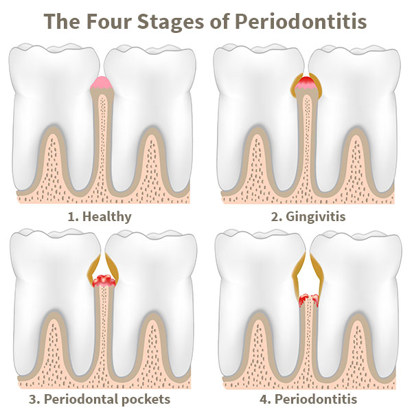 The Four Stages of Periodontitis - Clinton Family Dental IA